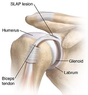 dolor de hombro cialis